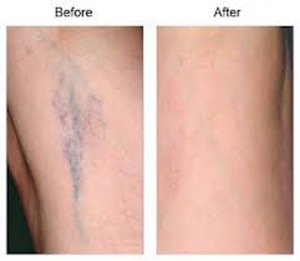 image of before and after sclerotherapy treatment