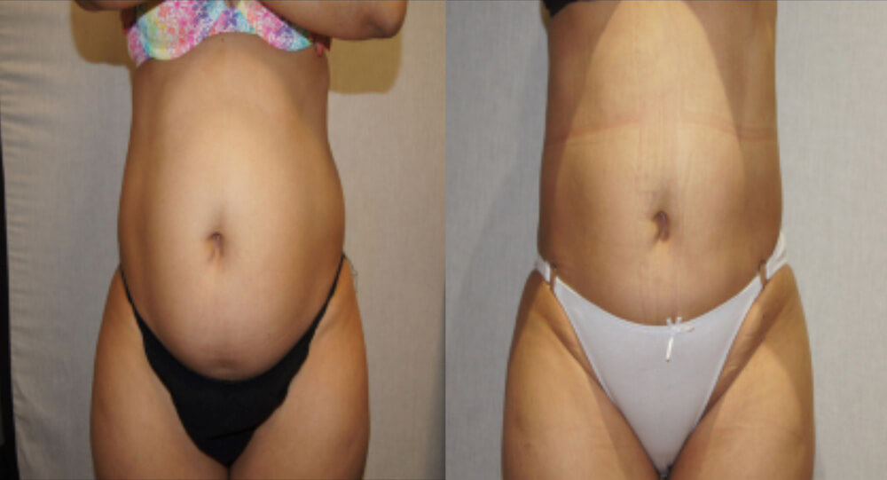 pat1SV before and after abdomen
