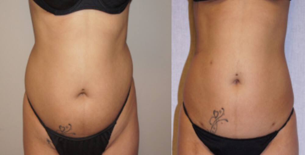 pat7 abdomen before and after