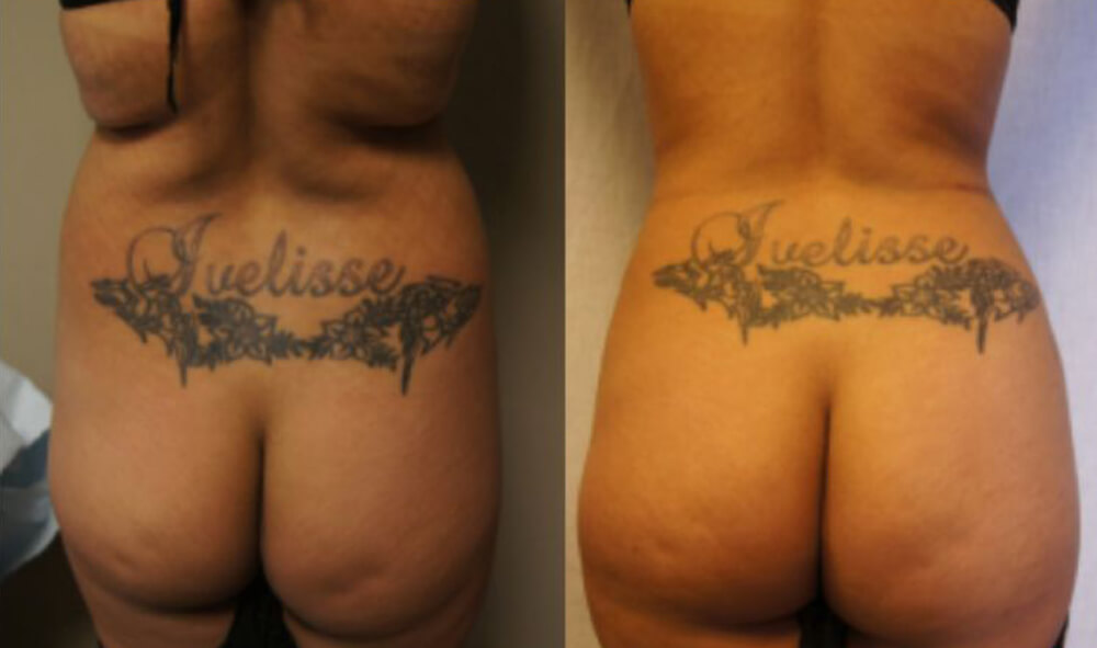 pat_7__buttocks_before_and_after