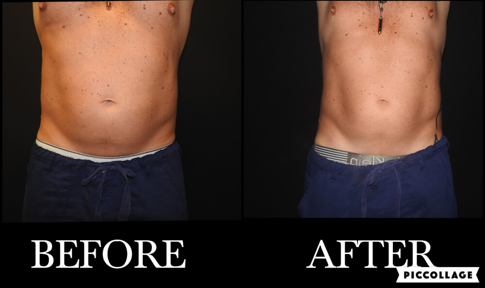 pat_6_buttocks_before_and_after