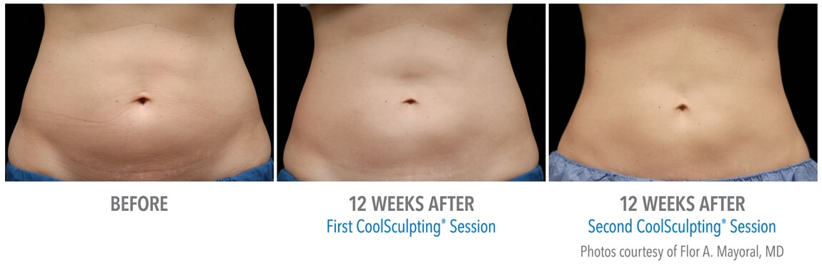 Coolsculpting in New York