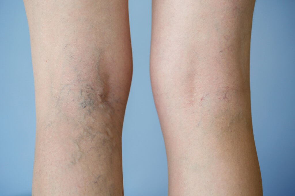 Get rid of those unwanted spider veins with varicose vein removal.