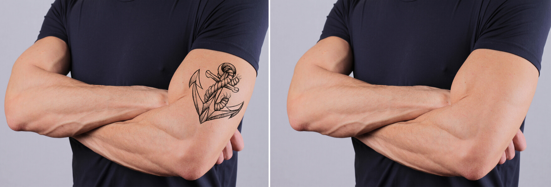 How Is Your Skin Affected By Laser Tattoo Removal