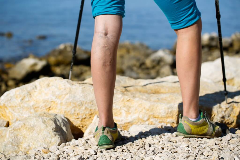 5 Reason Why People Develop Painful Varicose Veins
