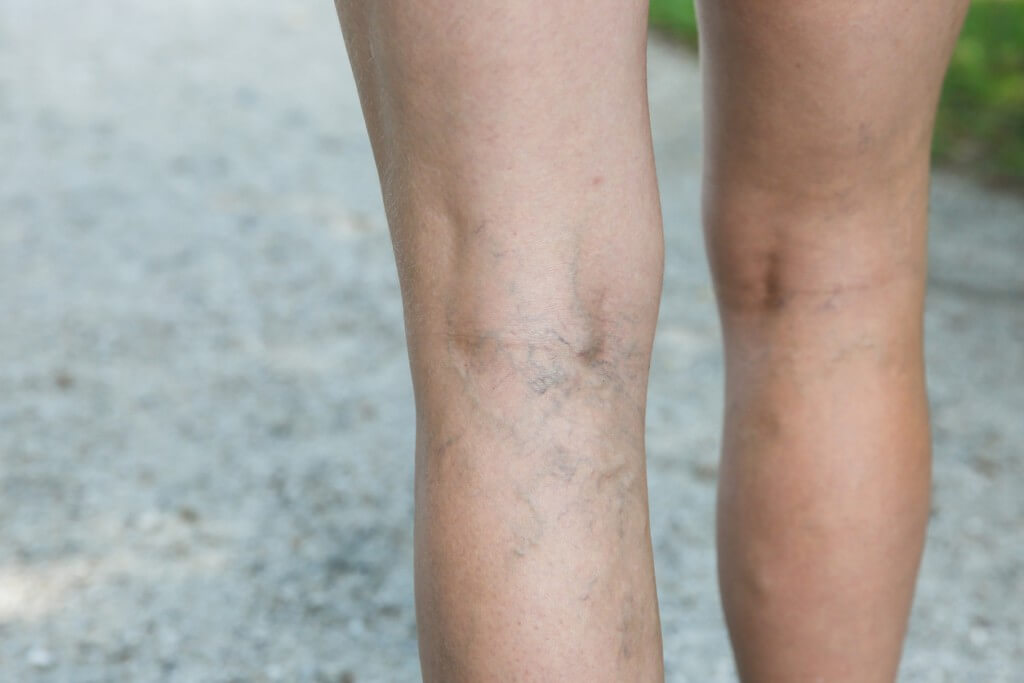 There are a range of temporary and more permanent solutions to deal with your spider veins. One effective solution is sclerotherapy in Yonkers. Learn more.