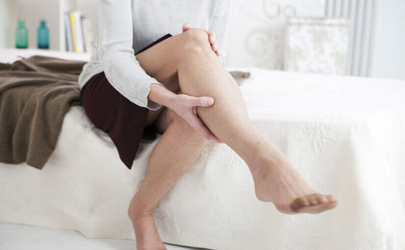 Woman with burning varicose veins