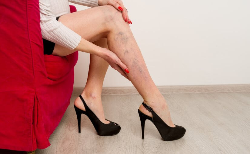 Is Your Knee Pain Caused by Varicose Veins?