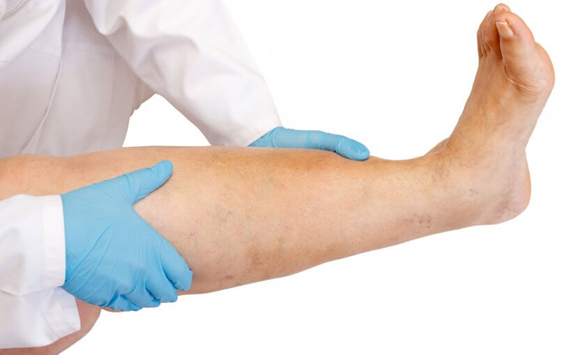 Why Your Swollen Legs May Be a Result of Varicose Veins