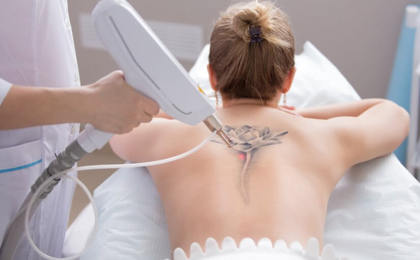 woman preparing for her laser tattoo removal