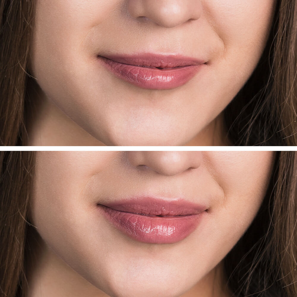 Woman's lips before and after augmentation
